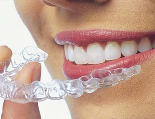 What is the best Dr. for me to see for my braces or Invisalign treatment in Miami?