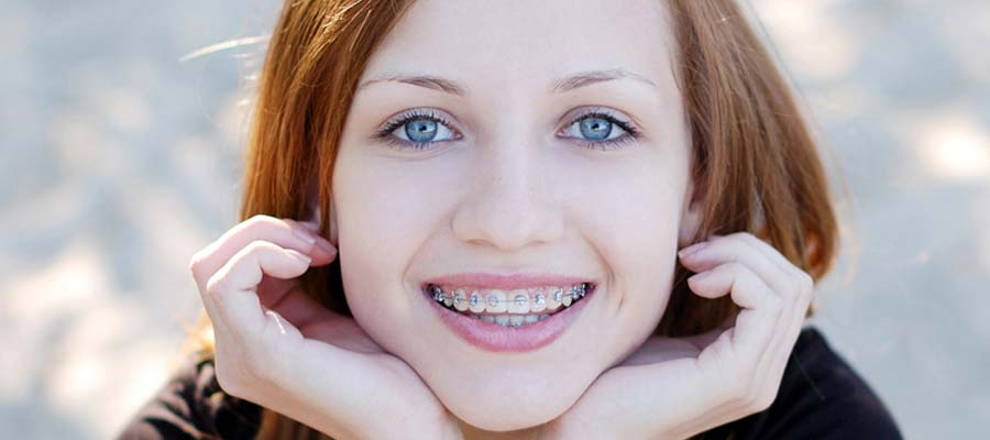 Braces for Teens | Affordable Types of Braces for Teenagers | Fashion Dental Braces